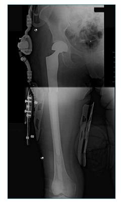 bari radiografica con protesi post intervento